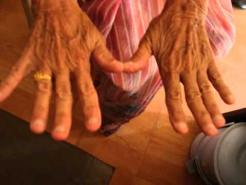 Nail Biting, Its Cause, Effect and Homeopathic Treatment (with Cured Case) Dr.Ravi Singh