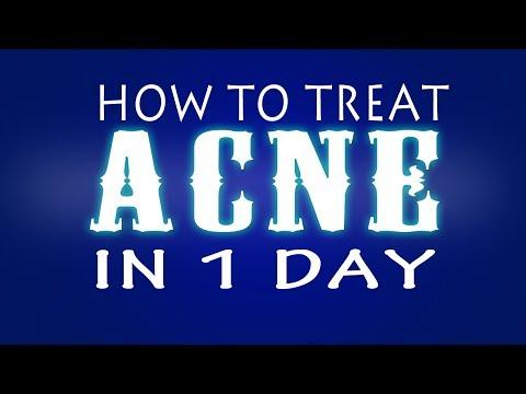 Acne Home Remedies [PDF]